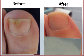 Effectively Kill Toenail Fungus Safely and Quickly Using Laser Technology at Beauchamp Foot and Nail Laser Clinic