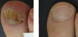 Get Toes Ready For Summer: Your Next Step, Philadelphia Offers Fast, Drug-Free Toenail Fungus Laser Treatment That Gets Rid of Toenail Fungus