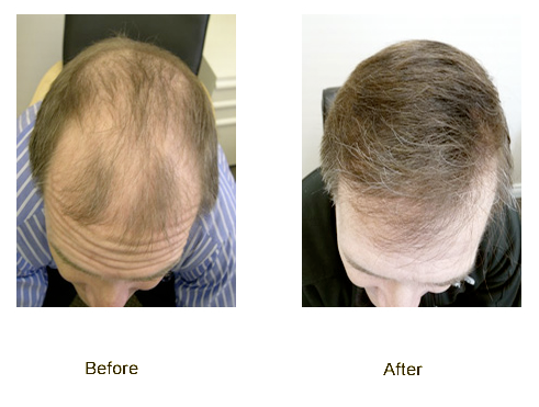 Instant Hair Thickening Fibers for Thinning Hair a Natural Solution to Minor Hair Loss
