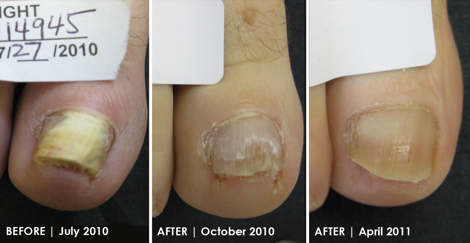 Thousands of Patients Effectively Treated for the Removal of Toenail Fungus at Your Next Step, Philadelphia
